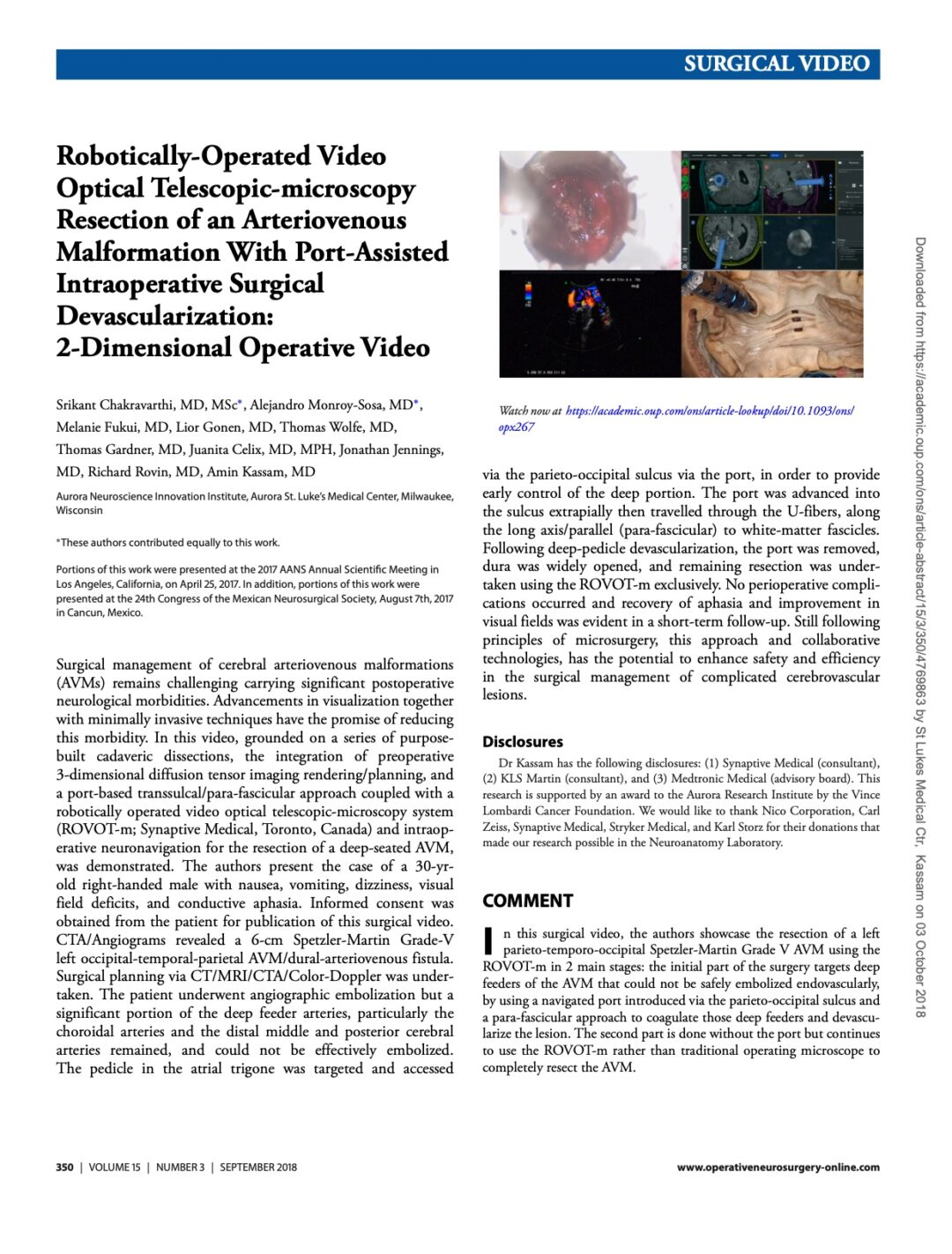 Robotically-Operated Video Optical Telescopic-microscopy Resection of an Arteriovenous Malformation With Port-Assisted Intraoperative Surgical Devascularization: 2-Dimensional Operative Video